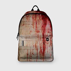 Рюкзак Бинты 1 цвета 3D — фото 2